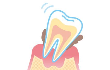 顎の骨がやせていってしまう原因