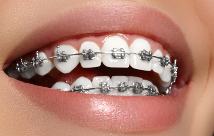 八重歯を治す治療法