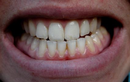 歯の色・形が見た目年齢に与える影響