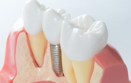 歯が抜けた時の治療法