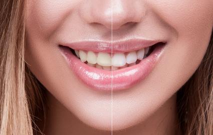 歯の着色を防ぐためにできること