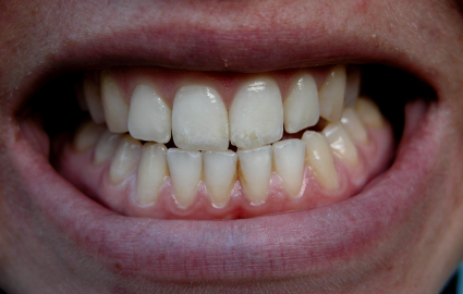 ひどい歯ぎしりは美を損なっていく危険性が