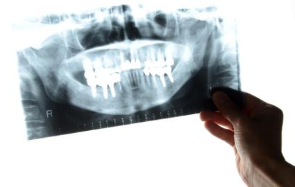 歯が黒くなっている場合の対処法