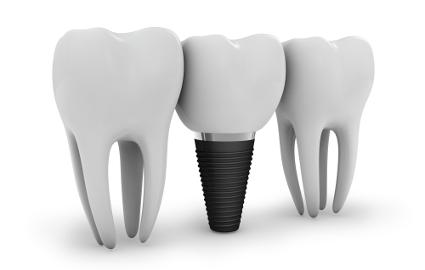 歯に食べ物や飲み物の色がついてしまう原因