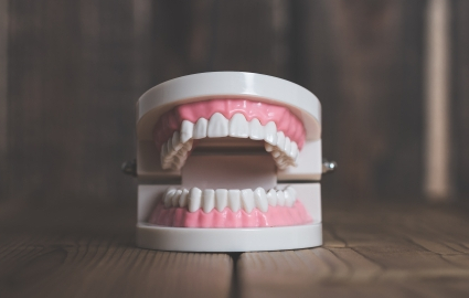 虫歯の歯の失い方、歯周病の歯の失い方