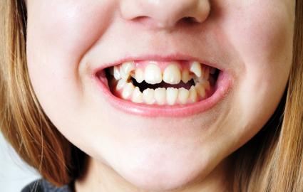 歯並びの良し悪しが他人に与える印象